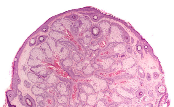 Microscopic image of a skin biopsy of a bump from an elderly man's nose, showing sebaceous hyperplasia, a benign condition in which the sebum producing glands become abnormally enlarged.