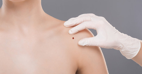 Dermatologist examining birthmark on woman shoulder, panorama