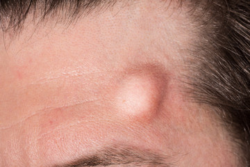 A large hematoma is seen up close on the forehead of a Caucasian man. Large raised lump symptom of a head trauma with copy space on the left.