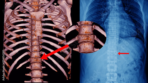 CT Scan Thoracic spine 3D and x-ray Thoracic spine finding