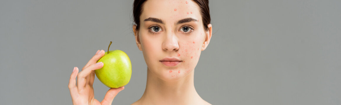 panoramic shot of young woman with acne on face holding green apple isolated on grey