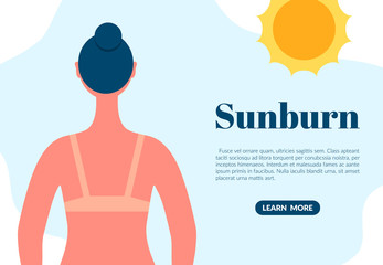 Sunburned woman back view cartoon character. Sun tanning danger concept. Skin redness flat vector illustration