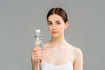young woman with problem skin holding bottle with water isolated on grey