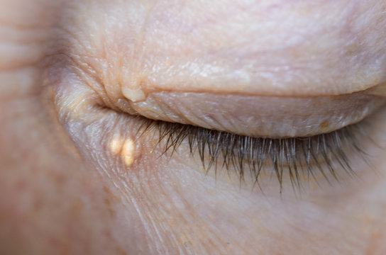 Close up of woman eyes with Xanthelasma on the eyelids. Hypercholesterolemia, high cholesterol.
