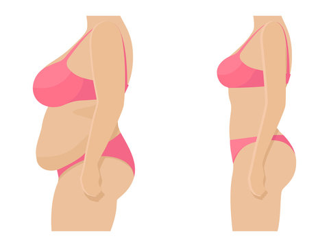 Female body before and after losing weight