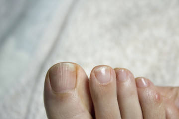Toenail with fungus