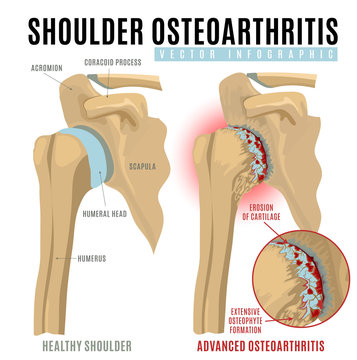 Shoulder osteoarthritis infographic