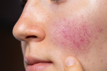 A young Caucasian lady is seen closeup, pointing towards her rosy red cheeks. A common symptom of rosacea in young adults. Copy space on the right.