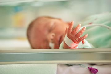 Supernumerary finger, Polydactyly case of newborn portrait
