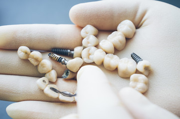 Stomatology and healthcare. Dentist choosing dentures in his hands.