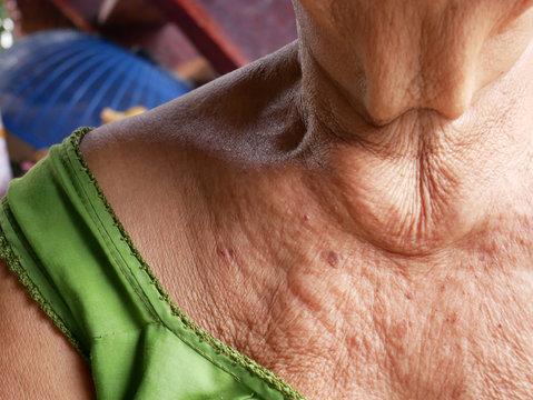 Close-up skin of an elderly woman.