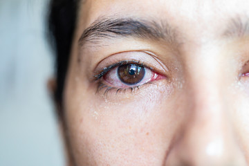Closeup  of irritated red eye of a patient with human conjunctivitis or infected red bloodshot eye Wall mural