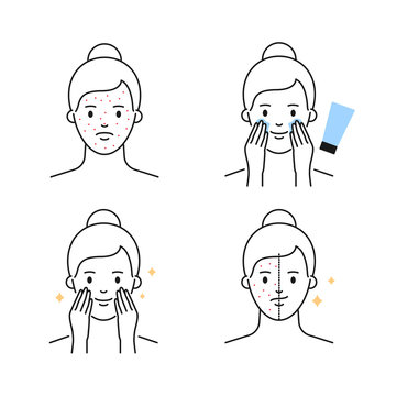 Acne problems and treatments female character outline vector icons
