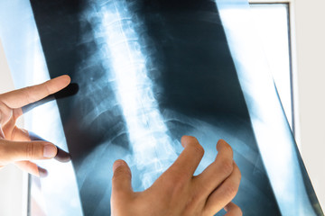 doctor examines x-ray picture of human spine