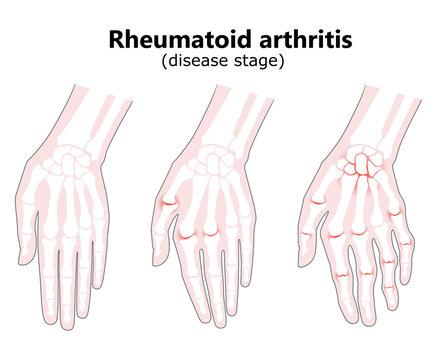 Rheumatoid arthritis bone hand. Palm and fingers. Vector image on white background. Flat design.