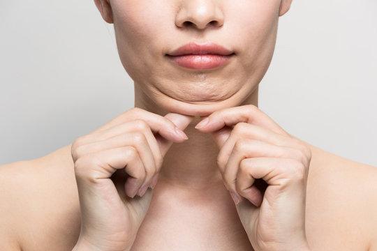あごの脂肪