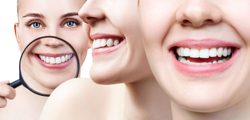 Collage of perfect female teeth closeup with text space.