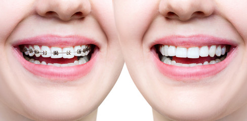 Beautiful smile with perfect teeth before and after braces.