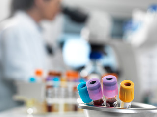 Medical samples in the laboratory