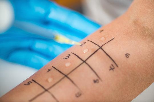Allergy - Skin Prick Testing