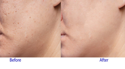 Picture of before and after treatment in beauty clinic of Woman's problematic skin , acne scars ,oily skin and pore, dark spots and blackhead and whitehead on the face.