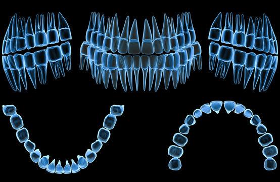 Teeth x-ray (5 views)
