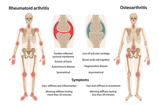 MobileThe difference between rheumatoid arthritis and osteoarthritis. On the body, arthritic sites are marked. Images of joints affected by rheumatoid arthritis and osteoarthritis. Vector illustration