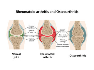 Rheumatoid arthritis and osteoarthritis of the joint. Images of healthy joint and diseased joints with main parts labeled. Vector illustration in flat style isolated over white background