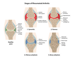 Rheumatoid arthritis stages of the joint with main parts labeled. Images of healthy joint and diseased joints with main parts labeled, isolated on white background. Vector illustration