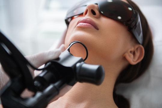 Close up of ladies laser fractional resurfacing