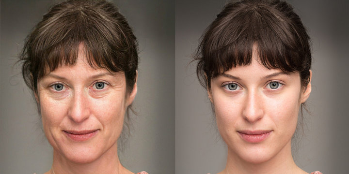 Woman before and after a rejuvenation treatment. Wrinkles, crow's feet and eye bags removal