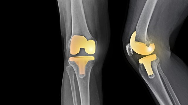 Film X-ray knee radiograph showing degenerative osteoarthritis (OA knee disease) treated by total knee replacement surgery ( TKR ) or joint prosthesis and free copy space. Medical technology concept.
