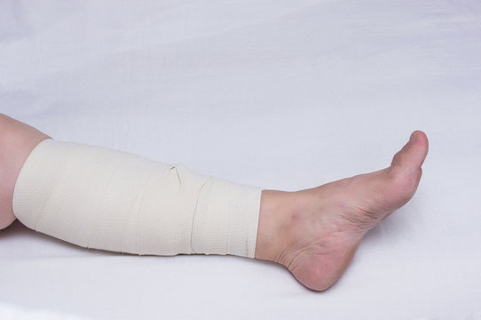 Leg of an elderly woman bandaged with an elastic bandage against varicose veins on the leg, close-up, white background, phlebeurysm, arteries, trauma
