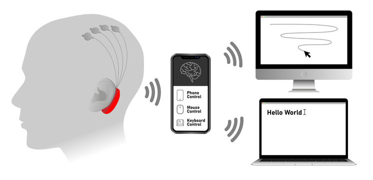 Implantable brain–machine interface with chronic electrode implant, neural-control interface, brain–computer interface.  Communication between brain and external device. Neuroprosthetics