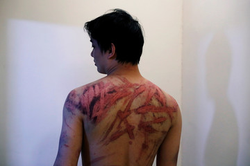 Calvin So, a victim of Sunday's Yuen Long attacks, shows his wounds at a hospital, in Hong Kong