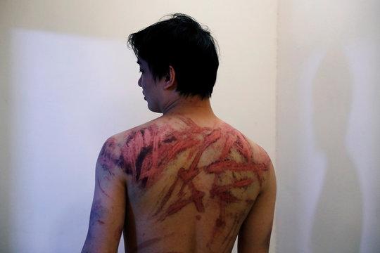 Calvin So, a victim of Sunday's Yuen Long attacks, shows his wounds at a hospital, in Hong Kong