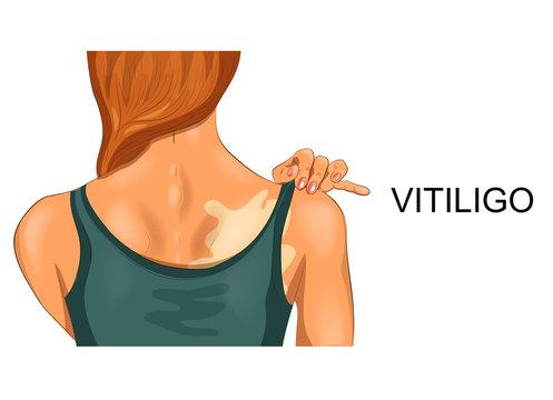vitiligo on female back