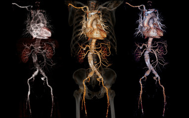Comparison of CTA abdominal aorta 3D rendering image  with stent graft on transparent skeletal .