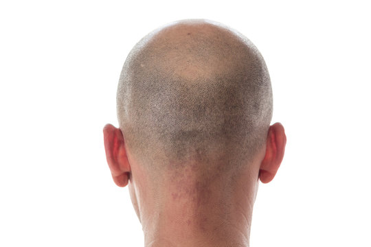 Bald man head on the back