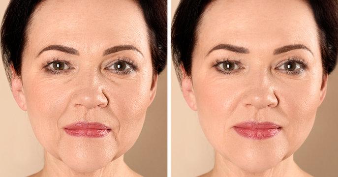 Beautiful mature woman before and after biorevitalization procedure on beige background, closeup