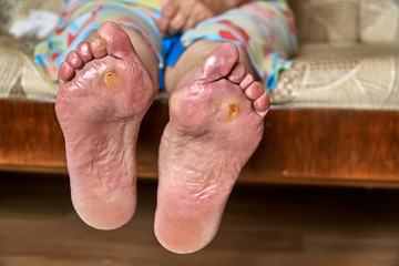 An elderly woman feet with podagra, fungus and diabetic ucler, callus. Healthcare concept