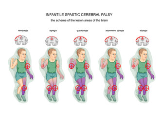 spastic infantile cerebral palsy