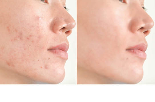 Acne scars and pores. Black spots, wrinkles and skin problems  Facial Treatment Step