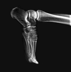 X-Ray Of An Athlete's Foot.