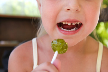 Child eats candy. Girl has caries on teeth.