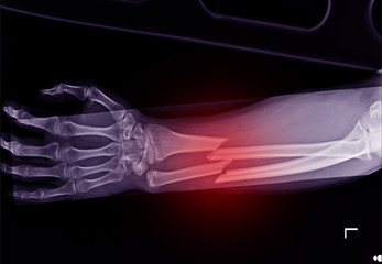 X-ray forearm fracture shaft of radius and ulnar bone