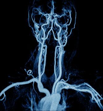 Magnetic Resonance Angiogram of the brain vasculature (arteries)