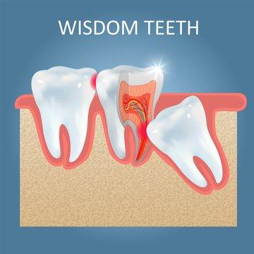 Wisdom teeth problems vector poster design template