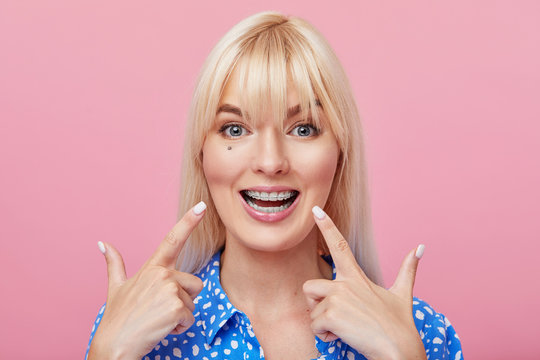 Cheerful happy young woman with blonde hair gesturing thumb up while pointing finger at braces on her teeth isolated over pink background. The concept of a healthy snow-white smile. Daily dental care