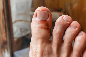 broken big toe after bounce. big toe bruise and inflamed gout. Painful gout inflammation on toe joints, selective focus Wall mural